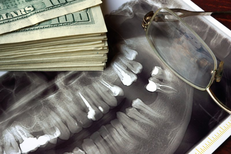 A dental X-ray next to a stack of money.